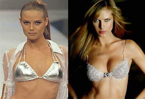 victoria secret model boob job jpg 596x410