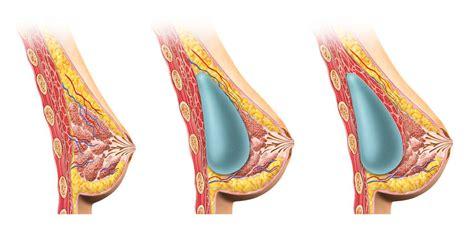 breast implant saline supply jpg 985x486